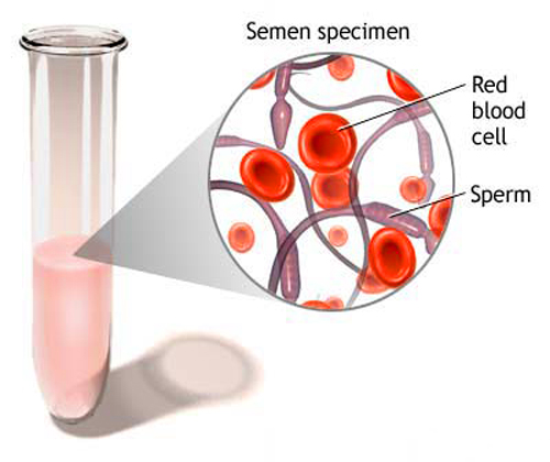 Blood-in-the-semen