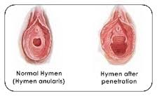 hymen before and after