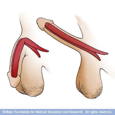 m7_penileimplant1