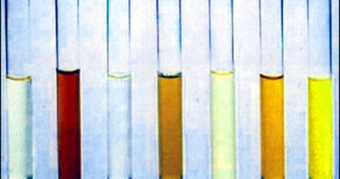 The presence of blood in urine